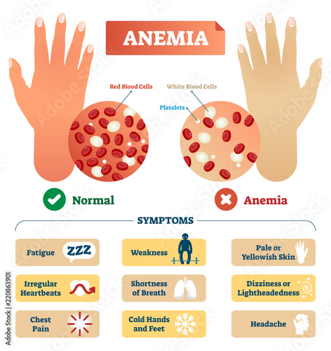 Photo Anemia vector illustration. Labeled scheme with red blood cells.