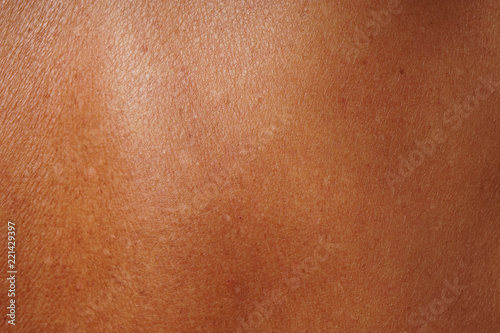 Photo  close-up human skin damged by age and sun tanning