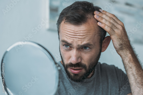 Pinturas sobre lienzo  upset middle aged man with alopecia looking at mirror, hair loss concept