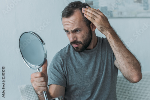 Cuadros en Lienzo  bearded middle aged man with alopecia looking at mirror, hair loss concept