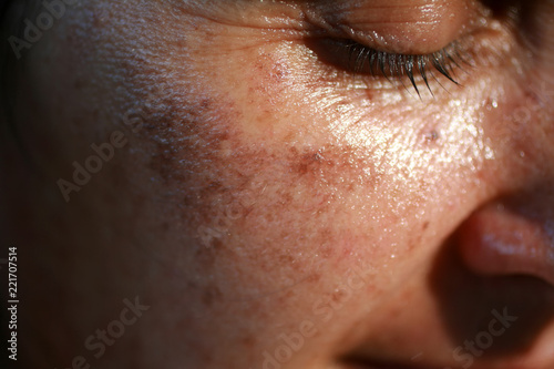 Fotografía  Pigmented spots on the face. Pigmentation on cheeks