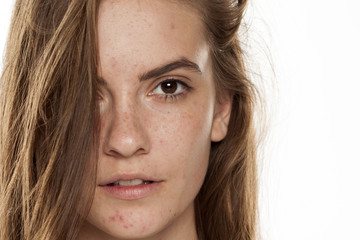 Portrait of young beautiful woman with frackles and problematic skin on white backgeound