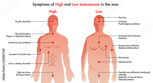 Fotografía  medical illustration of the symptoms and consequences in man to have a high leve