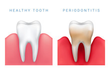 Vector Medical Illustration Of Realistic Healthy Tooth And Periodontitis Disease