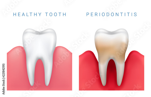 Fotomural  Vector medical illustration of realistic healthy tooth and periodontitis disease