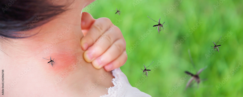 Fototapeta cute asian baby girl has rash and allergy on neck skin from mosquito bite and sucking blood while playing outdoor
