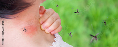 Photographie cute asian baby girl has rash and allergy on neck skin from mosquito bite and su