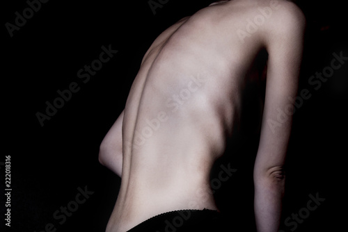 A girl with anorexia turned back, spine and ribs visible Canvas Print