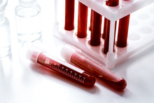 Glass Tubes With Blood Sample In Stand No One