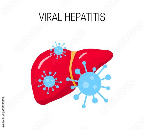 Obraz Viral hepatitis vector concept - fototapety do salonu