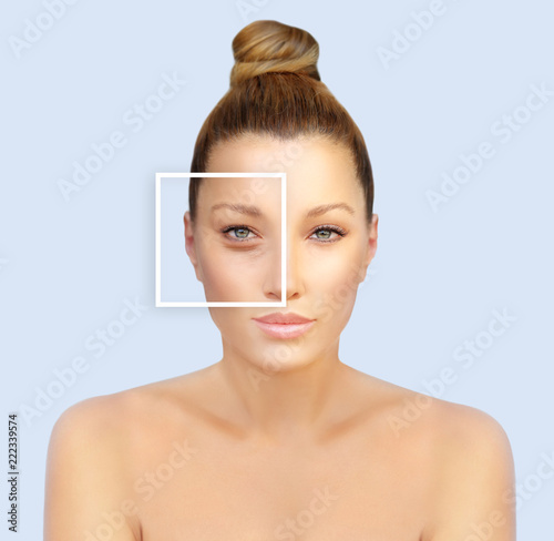 Obraz Lower and upper  Blepharoplasty. - fototapety do salonu