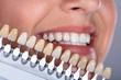 Leinwandbild Motiv Woman Matching Shade Of The Implant Teeth