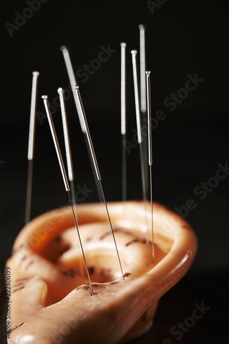 Fotografie, Obraz  Ear acupuncture model