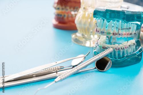 Fotografia orthodontic model and dentist tool - demonstration teeth model of varities of or