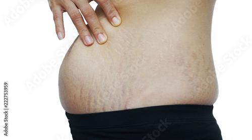 Obraz na plátne  stretch marks on Asian woman belly