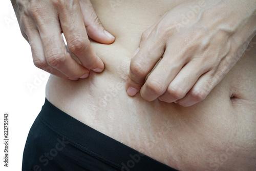 Fototapeta  stretch marks on Asian woman belly