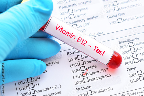 Fototapeta Blood sample tube with laboratory requisition form for vitamin B12 test  obraz
