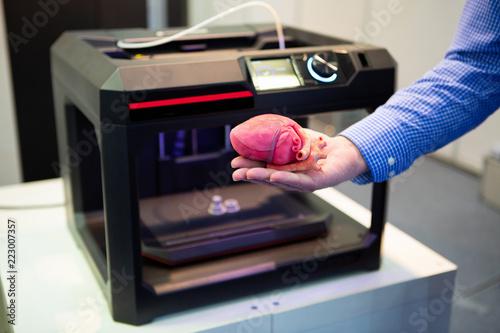 Fotografía The cardiosurgeon demonstrates the heart printed on a 3d printer