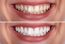Woman's Teeth Before And After...