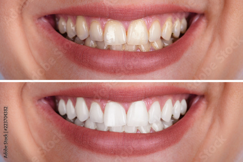 Leinwand Poster  Woman's Teeth Before And After Whitening