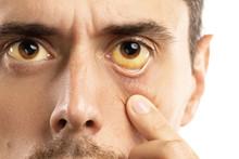 Yellowish Eyes Is Sign Of Prob...