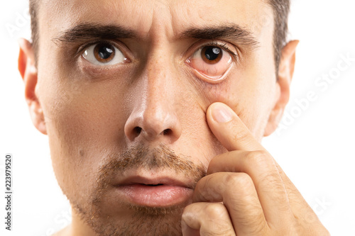 Man checking condition of his eye Canvas Print