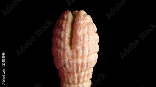 a diphyllobothriasis okai