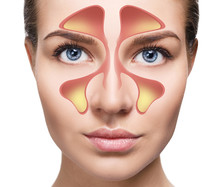 Female Face Shows Nasal Sinus ...