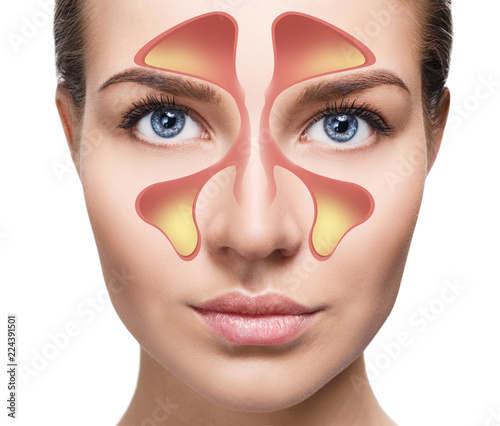Obraz Female face shows nasal sinus with cold over white background. - fototapety do salonu