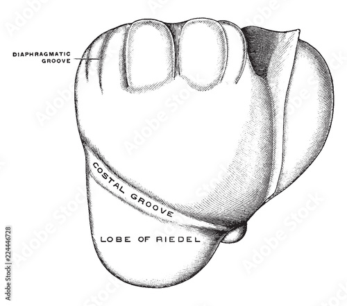 Fotografie, Tablou  Deformed Liver, vintage illustration.