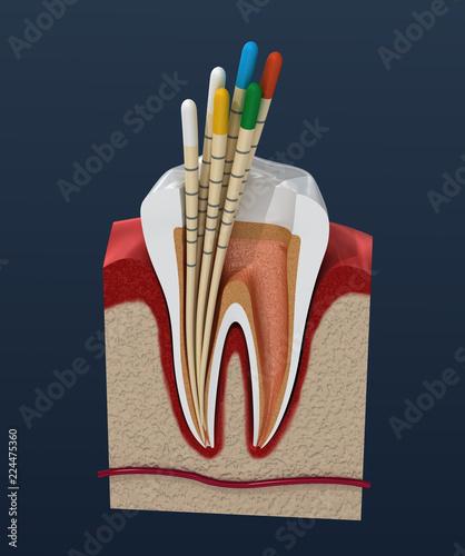 Gutta Percha Endodontics Instrument Dental Anatomy 3d Illustration