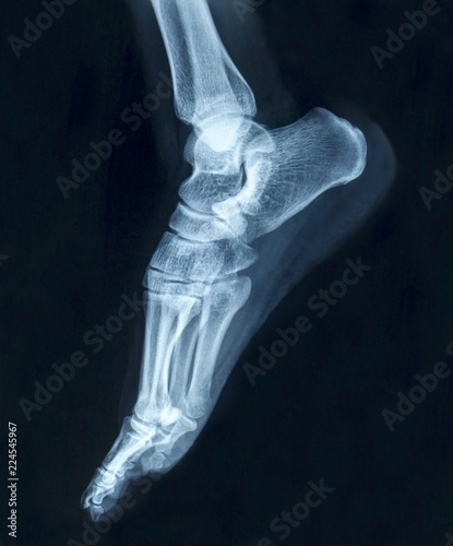 Film X Ray Normal Humans Foot Lateral Buy This Stock Photo And