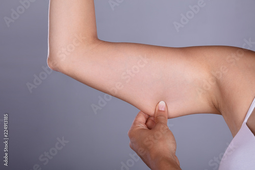 Foto  Woman Holding Arm With Excess Fat