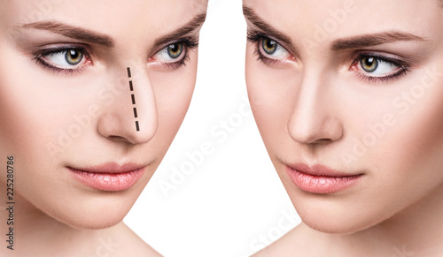 Female face before and after cosmetic nose surgery  - Buy this stock