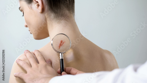 Fotografie, Obraz  Therapist examining wound on female shoulder with magnifying glass, health care