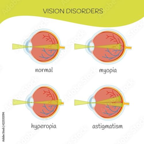 Mi a hyperopia és asztigmatizmus Hyperopia és myopia kezelés