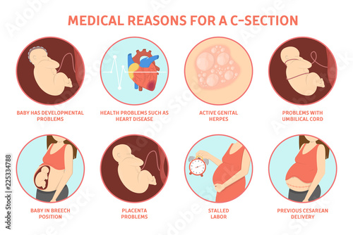 Fotografie, Obraz Medical reasons for cesarean delivery or c-section.