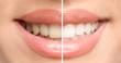 Leinwandbild Motiv Smiling woman before and after teeth whitening procedure, closeup