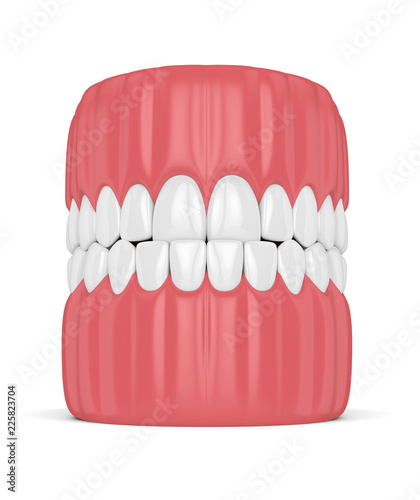 Valokuvatapetti 3d render of jaw malocclusion with underbite