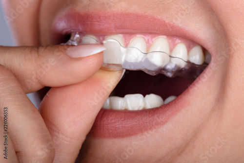 Photo  Woman Putting Transparent Aligner In Teeth