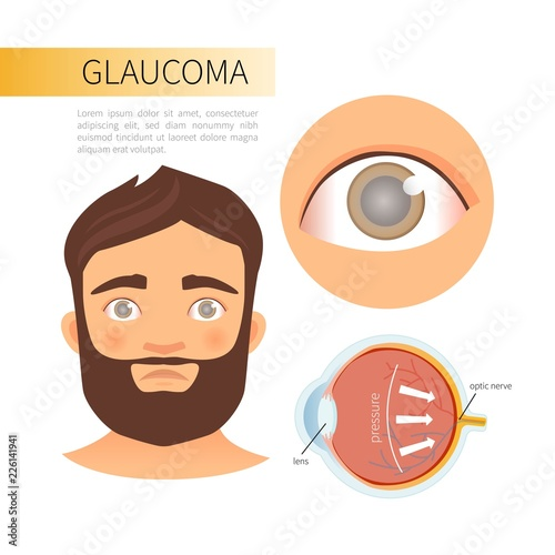 Fotomural Glaucoma infographics