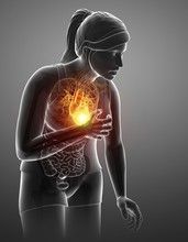 Woman With Chest Pain, Illustration