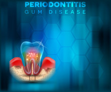 Periodontitis Gum Disease Poster, Inflammation Of The Gums On A Bright Blue Mesh Background