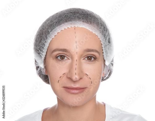 Portrait of woman with marks on face preparing for cosmetic surgery against whit Wallpaper Mural