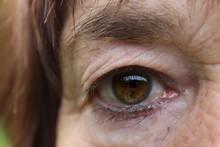 Grünes Auge Einer älteren Weiblichen Person Mit Implantierter Künstlicher Linse Nach Linsentrübung, Katarakt-Operation