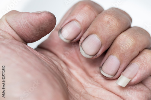 Stampa su Tela dirty finger nails unhealthy pile up germ and bacteria unclean worker hand