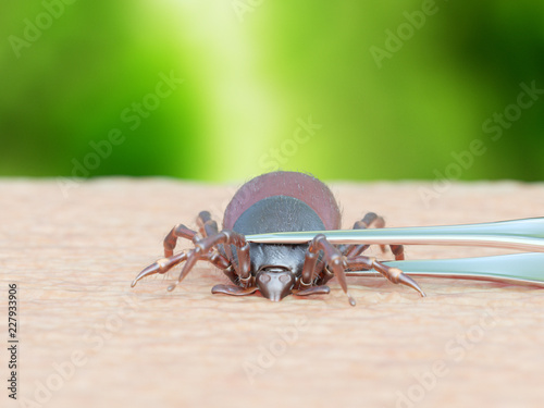3d rendered illustration of a tick being removed Wallpaper Mural