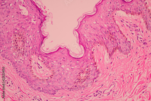 Fényképezés  View in microscopic of pathology cross section tissue ductal cell carcinoma or adenocarcinoma diagnosis by pathologist in laboratory