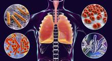 Human Respiratory Pathogens, 3...