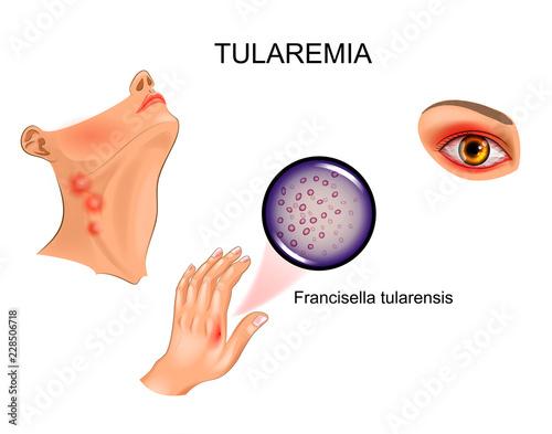 Photo tularemia. hand bite. lymphadenitis and conjunctivitis